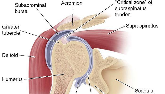 Bursitis en el brazo sintomas