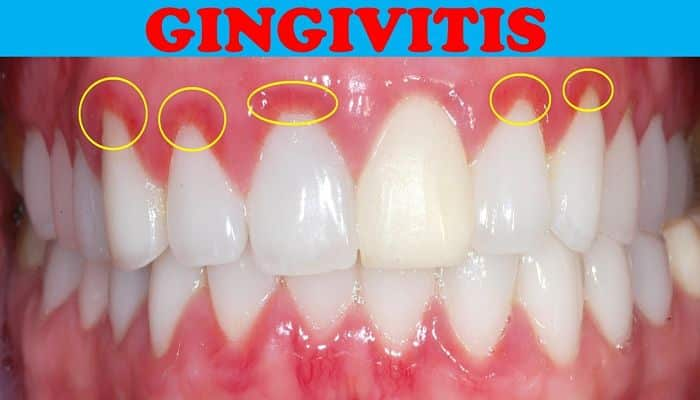 how to stop gingivitis fast
