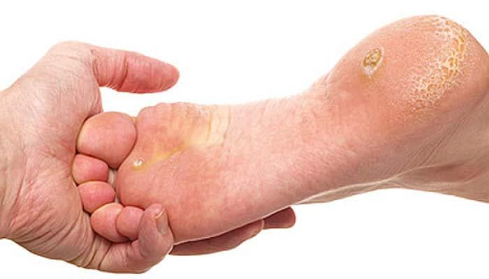 como curar llagas en los pies