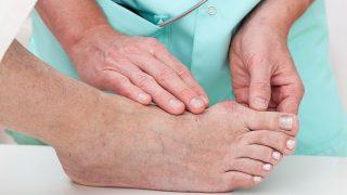 llagas en los pies