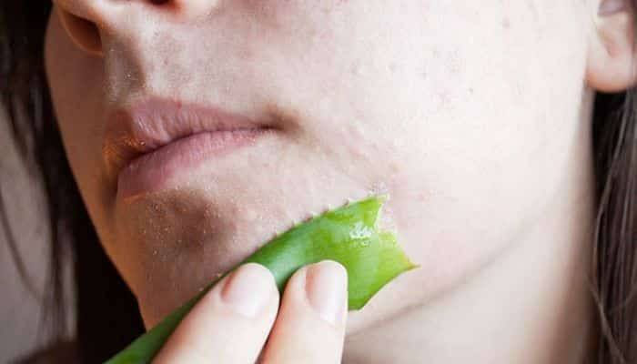 Remedios Naturales Para Curar La Rosacea