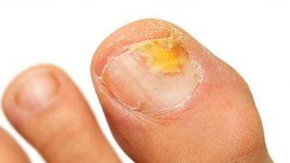 curar hongos en las uñas