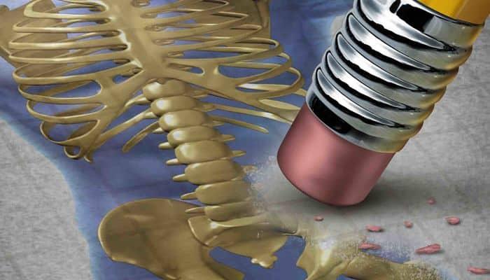 remedio para osteoporosis